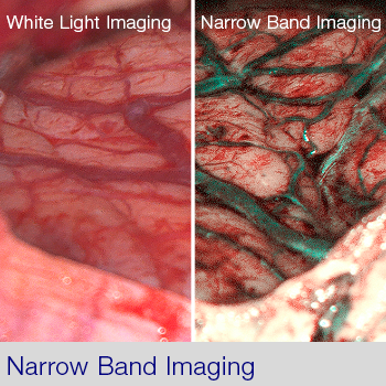 ORBEYE Narrow Band Imaging